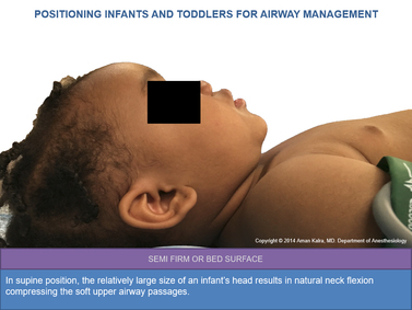Positioning Infants And Children For Airway Management